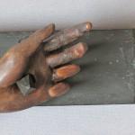 linke Hand Endzustand