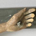 linke Hand Vorzustand